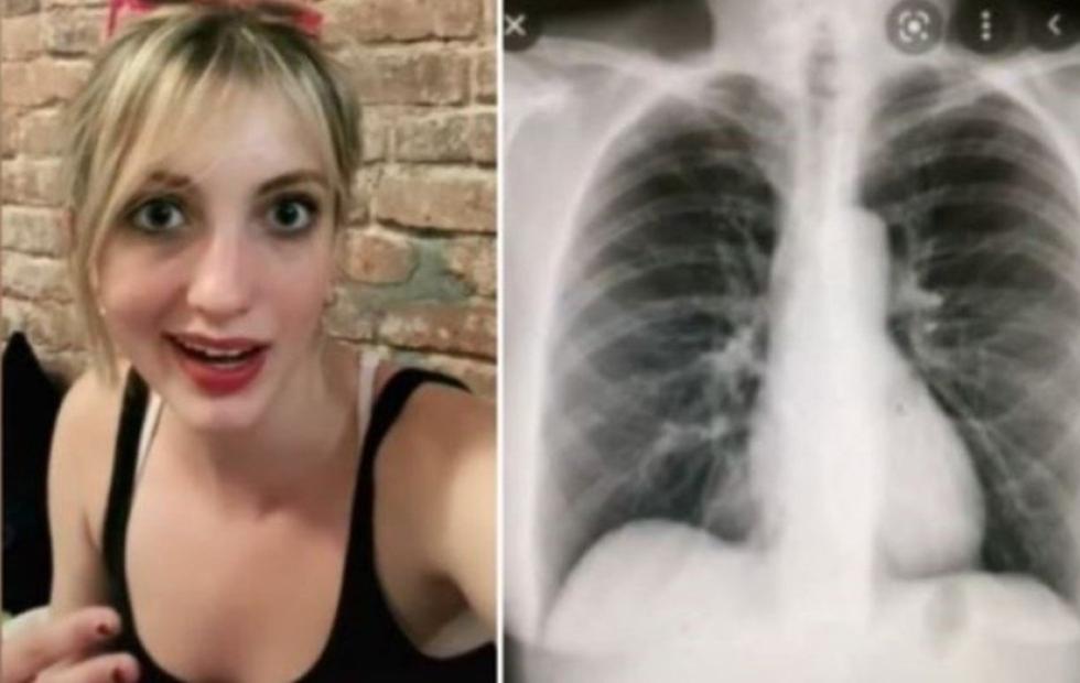 Fue al médico por una tos molesta y descubrieron que tenía el corazón del otro lado