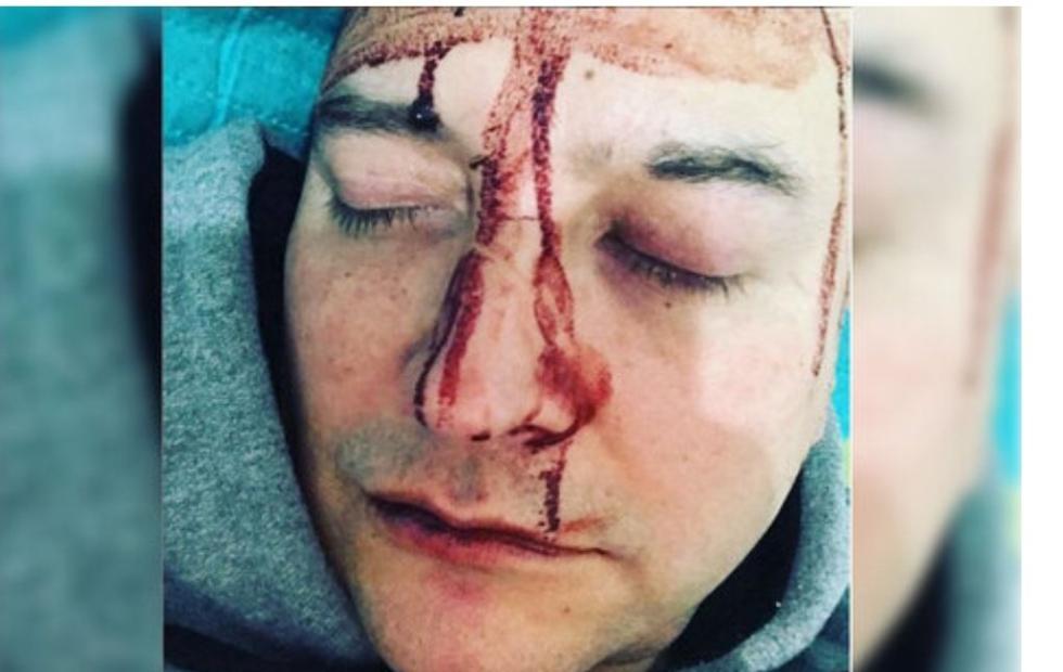 Un reconocido cantante sufrió un ataque homofóbico
